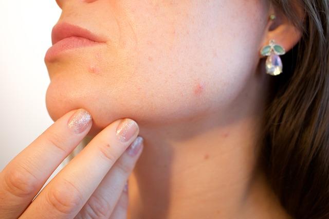 """Per sconfiggere l'acne, a Roma apre un centro IDI """"SOS Acne"""""""