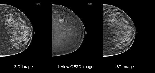 Mammografia in 3D: individua il 34% in più di tumori rispetto al sistema tradizionale