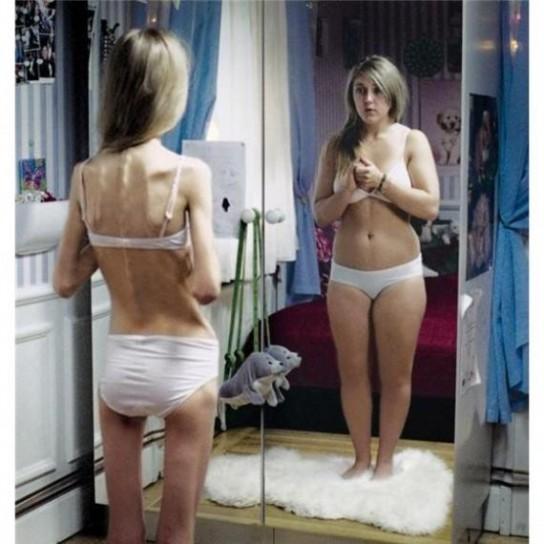 Sempre più giovani vengono colpiti da disturbi alimentari